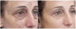 filler treatment brazen women article