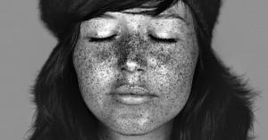 sun damage skin