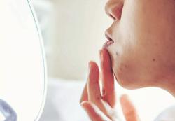 acne toronto